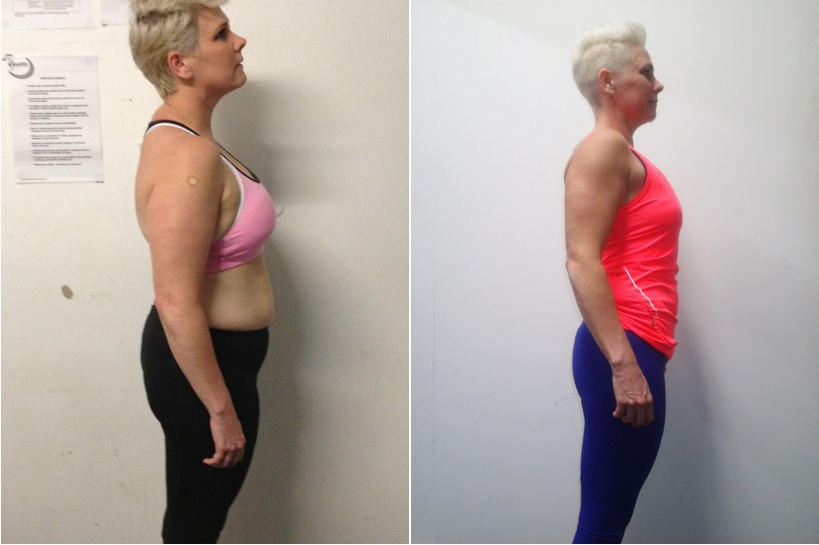 Jane Stafford Before and After